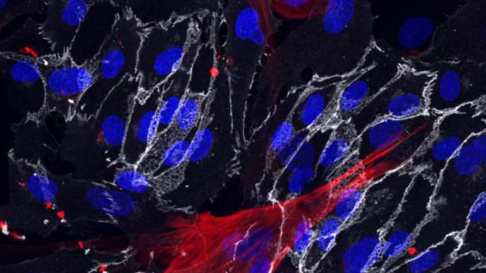 Method to Derive Blood Vessel Cells From Skin Cells Suggests Ways to Slow Aging