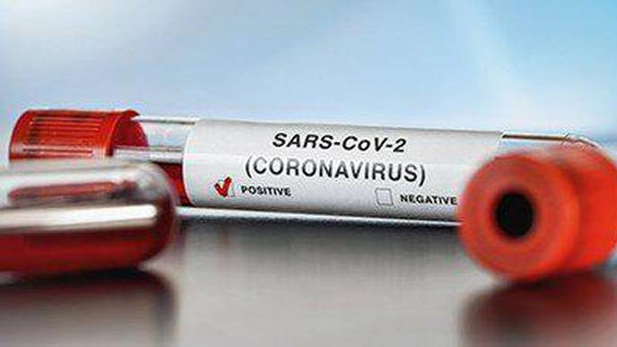 SARS-CoV-2 Protease Cuts Human Proteins Responsible for Immune Response