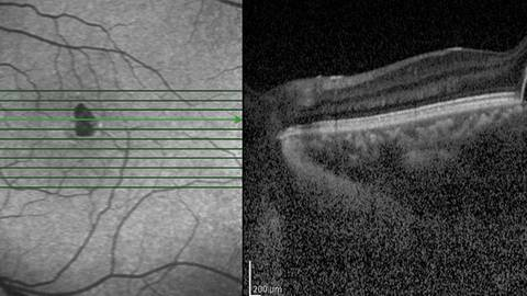 Viewpoints on Cases in Diabetic Retinopathy: What the Optometrist Needs to Know