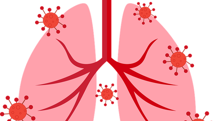 AI System Bests Radiologists in Spotting COVID-19 in Lungs