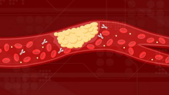 Scientists Identified the Cause of COVID-19 Blood Clots