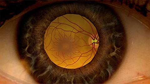Treatment Modalities for Diabetic Retinopathy