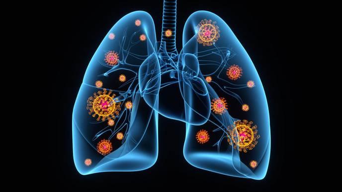 EU Evaluates Sobi Arthritis Drug to Treat COVID-19 with Pneumonia