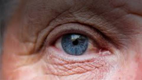 Genetic Risk Factors of Age-Related Macular Degeneration (AMD)
