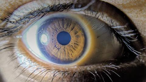 On the Frontline of Diabetic Retinopathy: Assessment of High-Risk Patient Populations