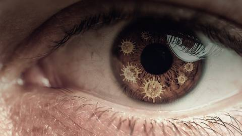 Managing COVID-19 Related Delays In Patients with Neovascular AMD